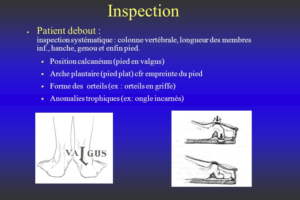 Inspection Patient debout : inspection systématique : colonne vertébrale, longueur des membres inf., hanche, genou et enfin pied.