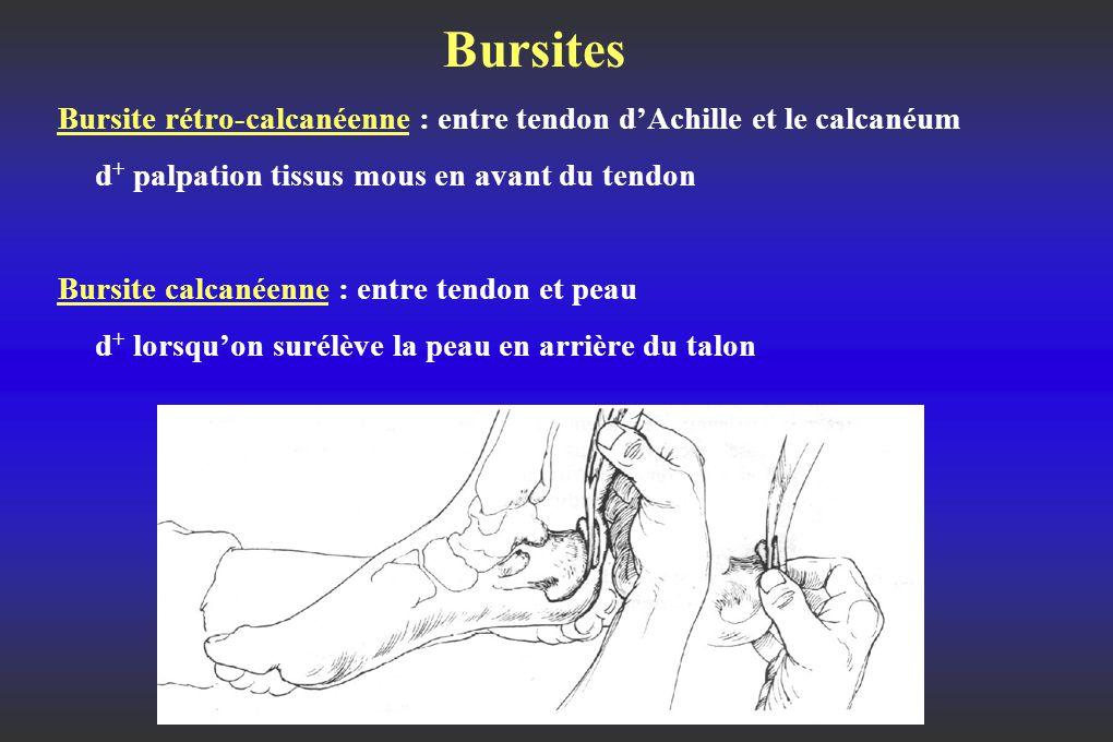 Bursites Bursite rétro-calcanéenne : entre tendon d'Achille et le calcanéum. d+ palpation tissus mous en avant du tendon.