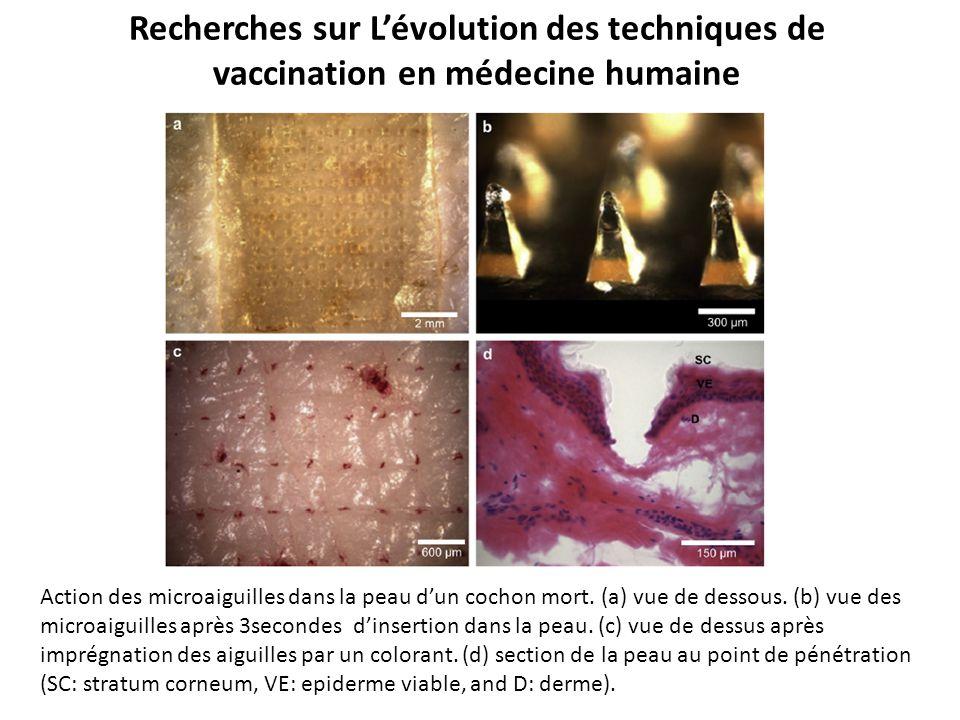 Recherches sur L'évolution des techniques de vaccination en médecine humaine