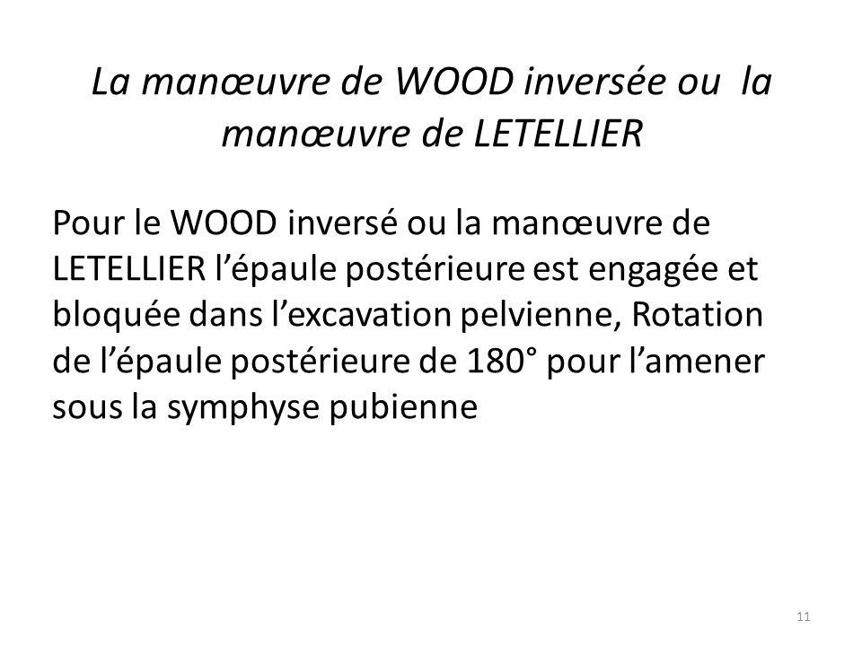 La manœuvre de WOOD inversée ou la manœuvre de LETELLIER