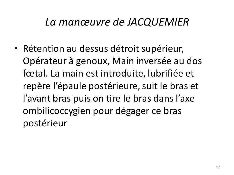 La manœuvre de JACQUEMIER