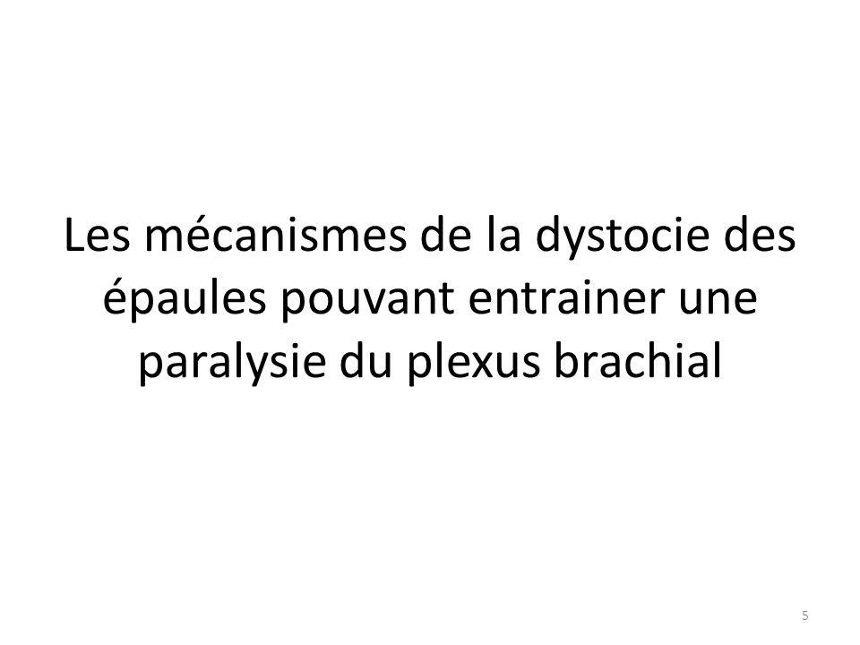 Les mécanismes de la dystocie des épaules pouvant entrainer une paralysie du plexus brachial