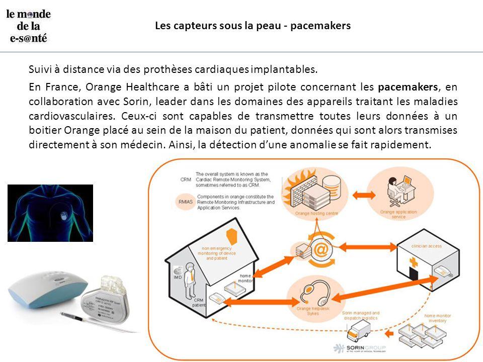 Les capteurs sous la peau - pacemakers