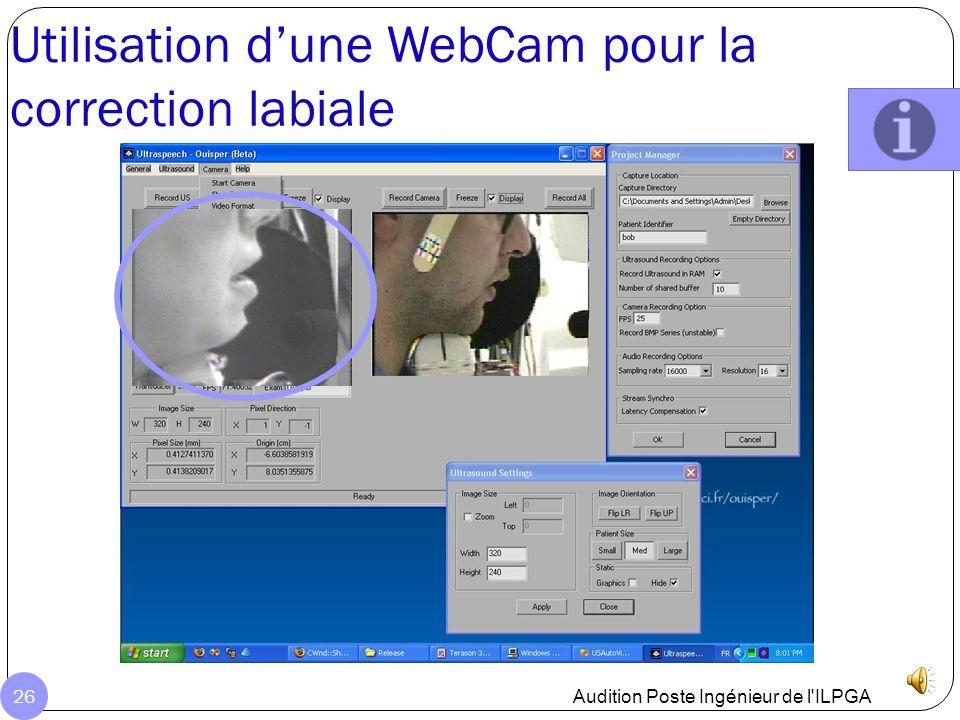 Utilisation d'une WebCam pour la correction labiale