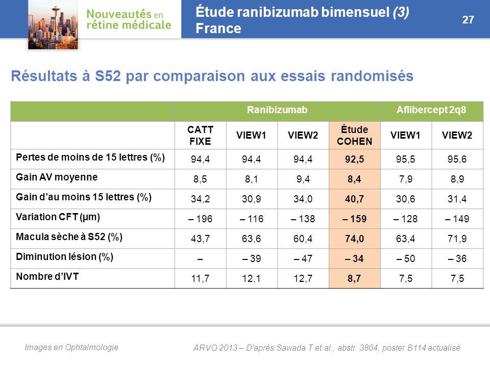 Étude ranibizumab bimensuel (4) Japon