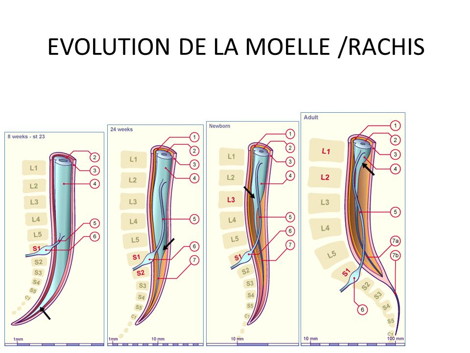 EVOLUTION DE LA MOELLE /RACHIS