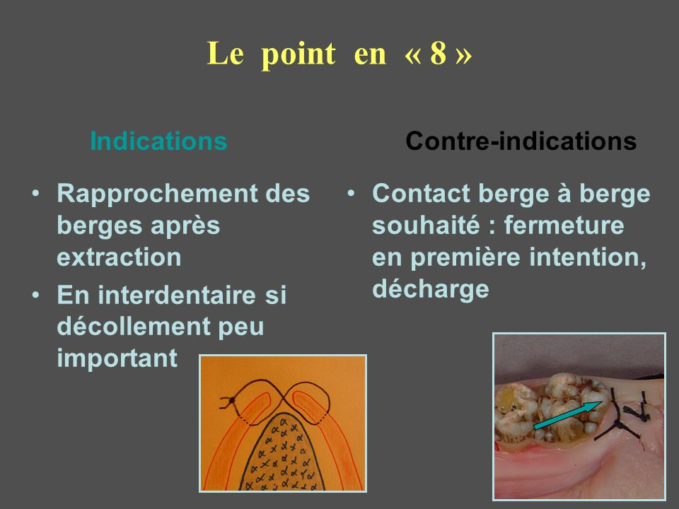 Le point en « 8 » Indications Contre-indications