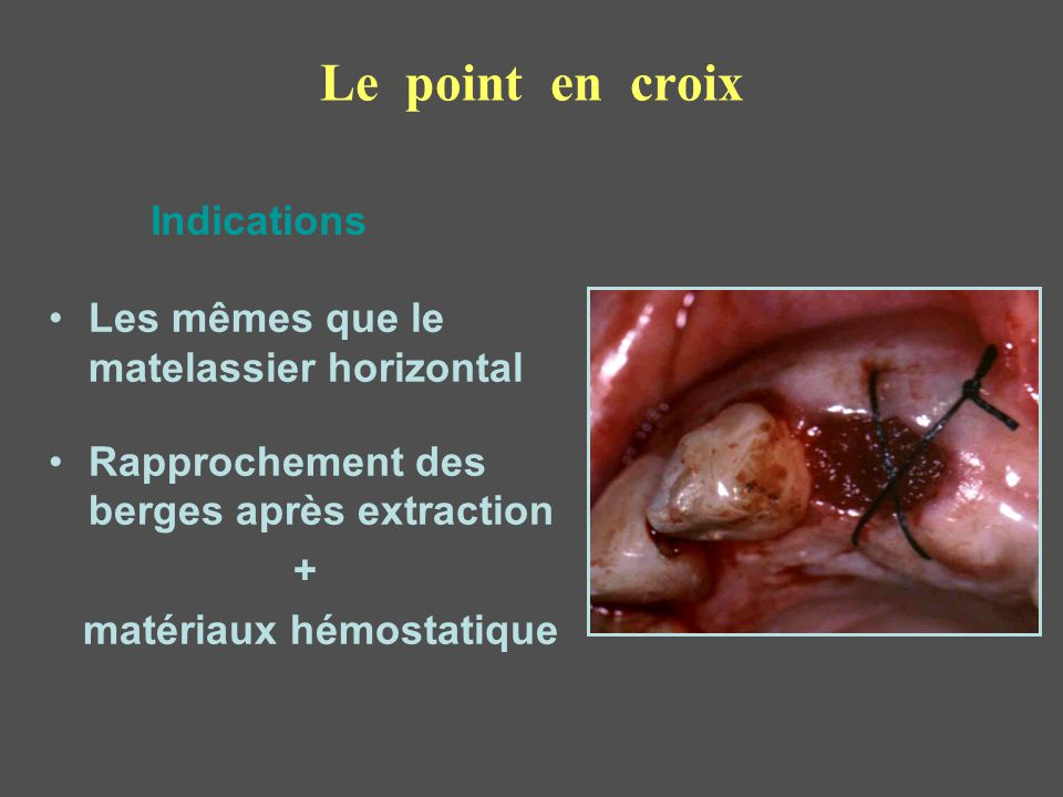 Le point en croix Indications Les mêmes que le matelassier horizontal