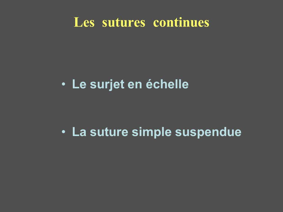 Les sutures continues Le surjet en échelle La suture simple suspendue