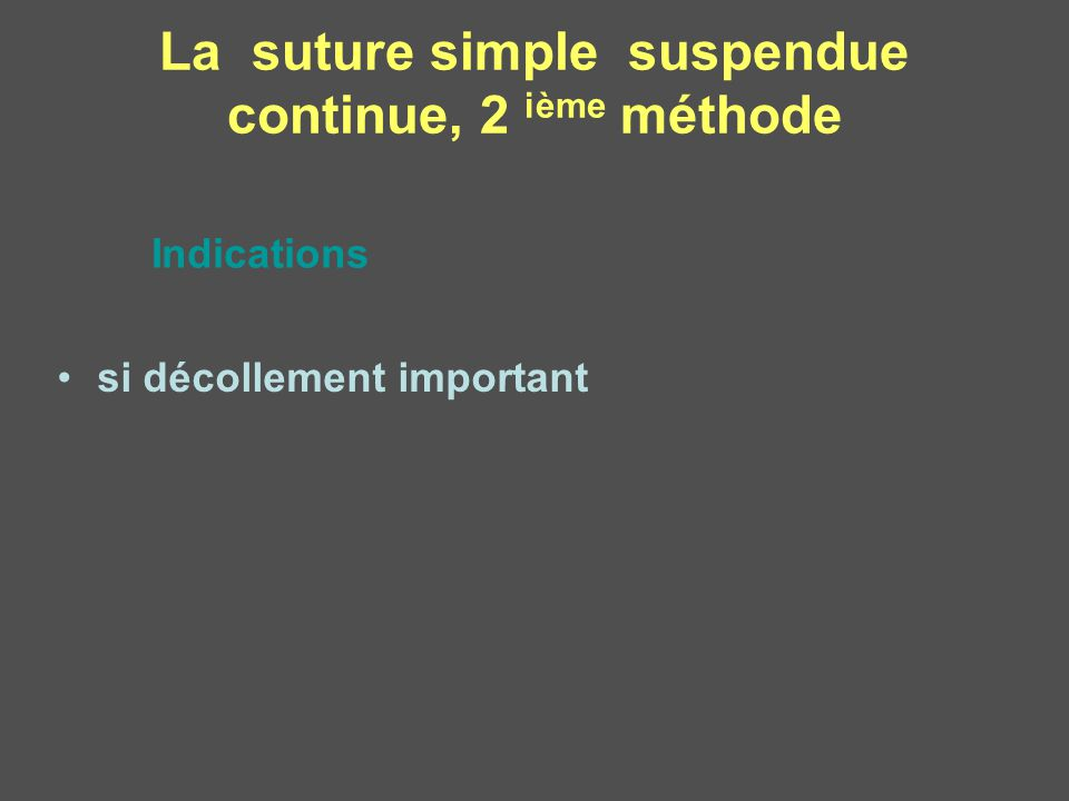 La suture simple suspendue continue, 2 ième méthode