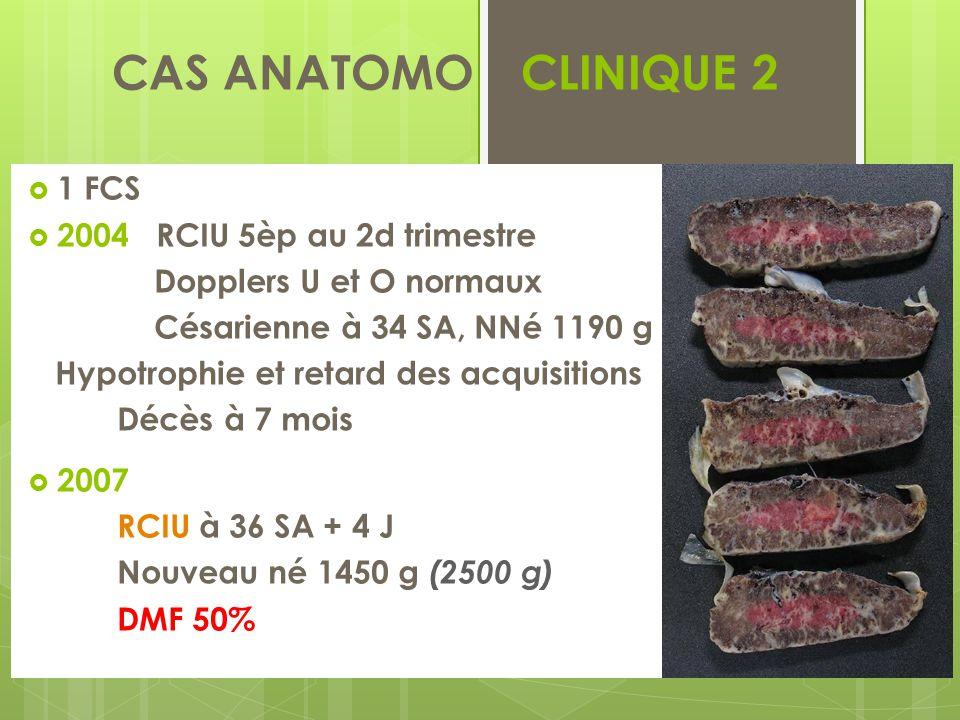 CAS ANATOMO - CLINIQUE 2 1 FCS 2004 RCIU 5èp au 2d trimestre