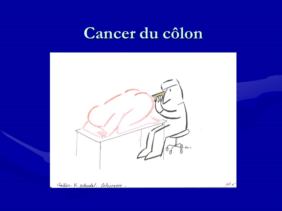 Cancer du côlon