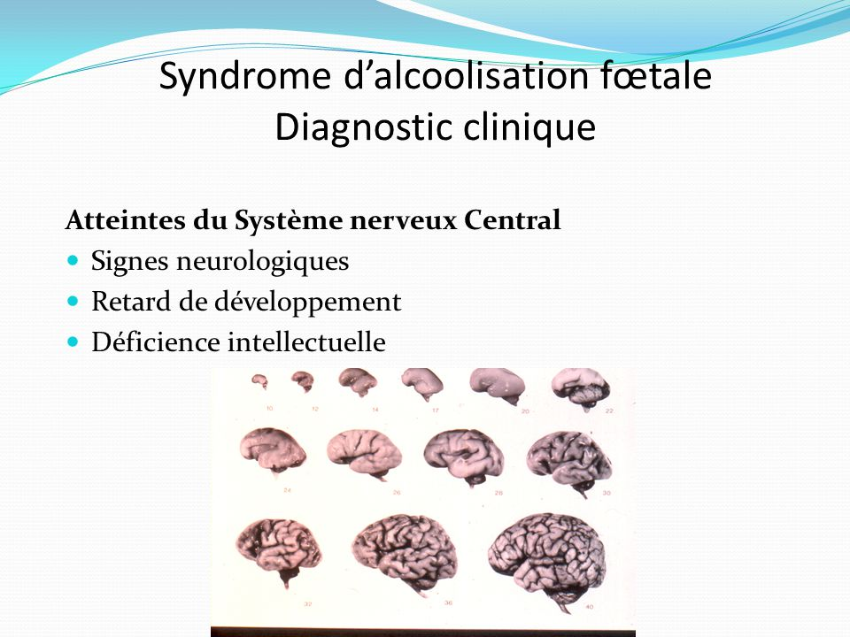 Syndrome d'alcoolisation fœtale Diagnostic clinique