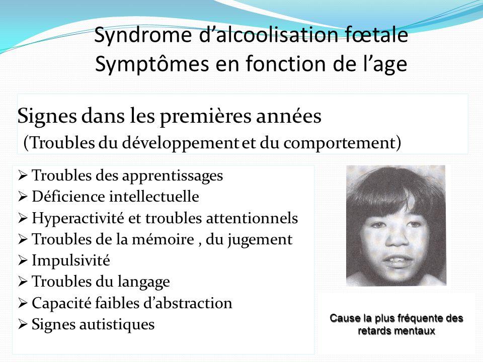 Syndrome d'alcoolisation fœtale Symptômes en fonction de l'age