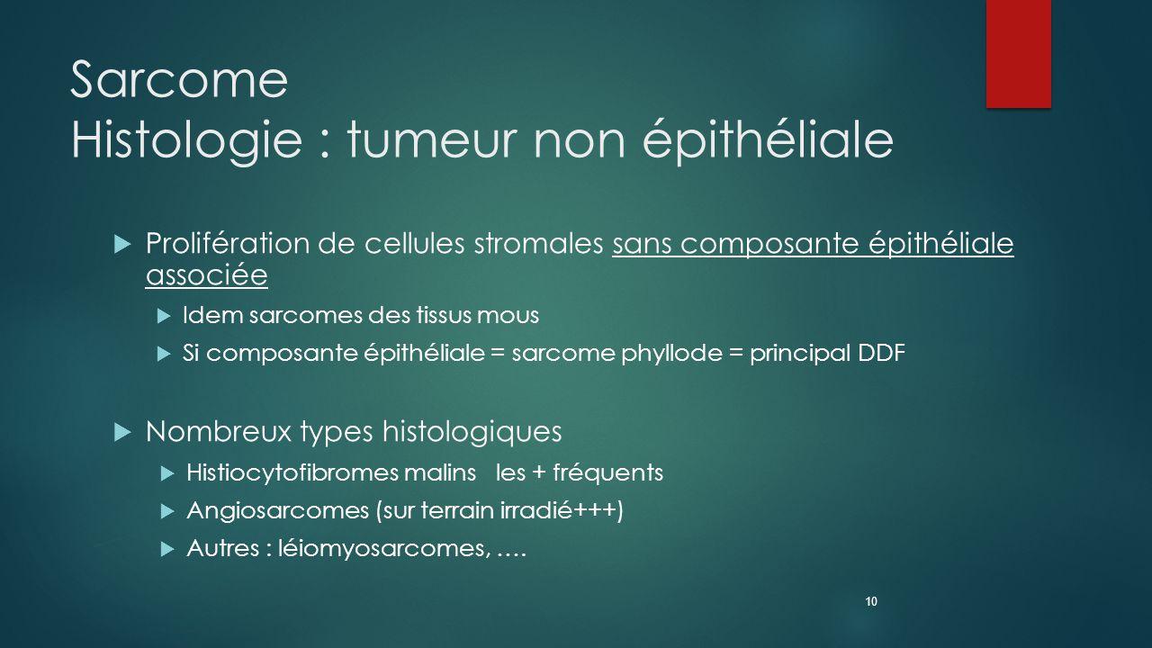 Sarcome Histologie : tumeur non épithéliale