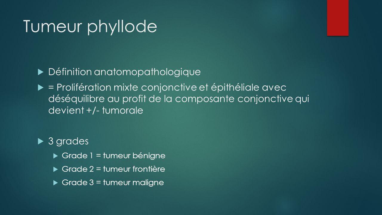 Tumeur phyllode Définition anatomopathologique