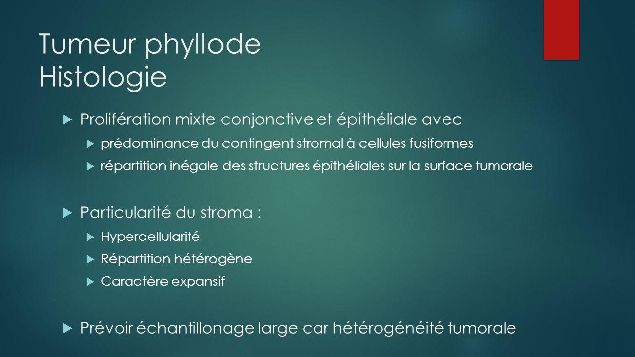 Tumeur phyllode Histologie