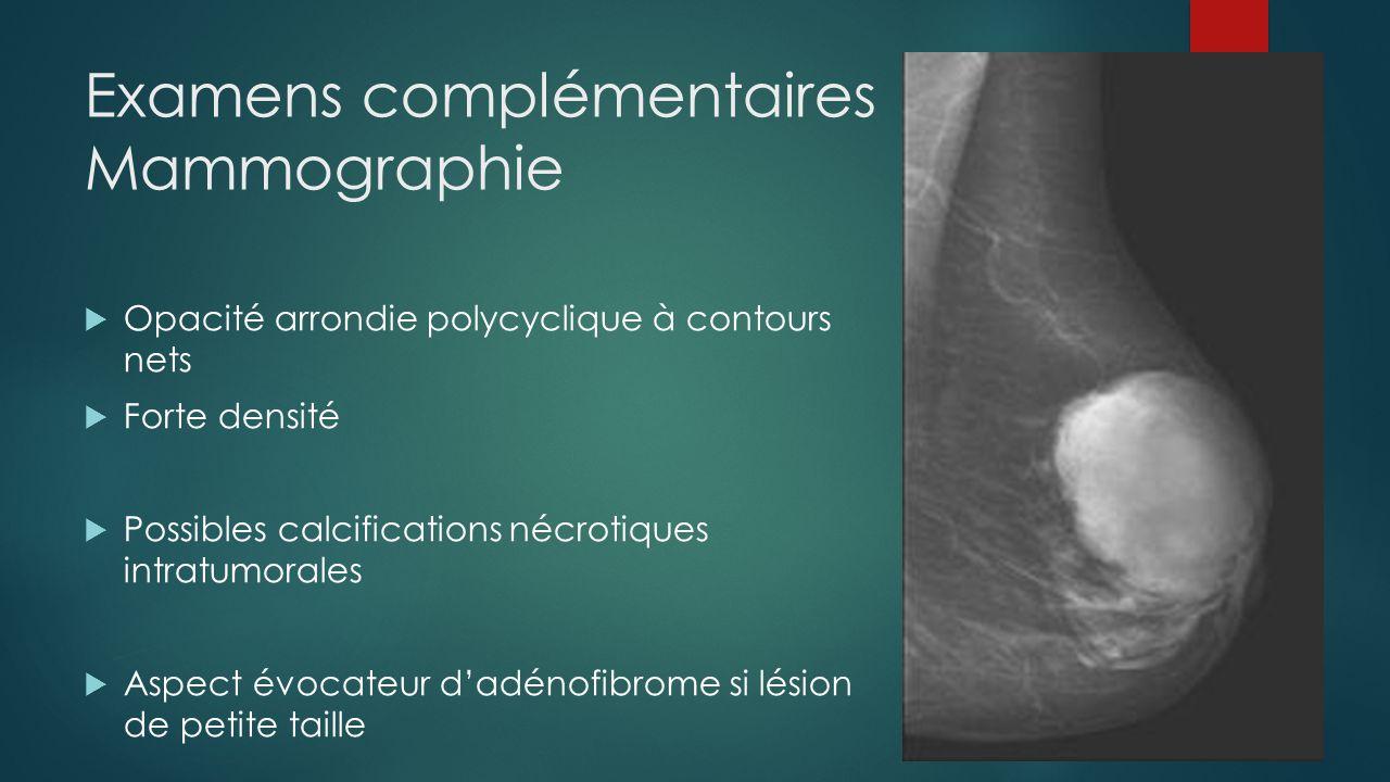 Examens complémentaires Mammographie