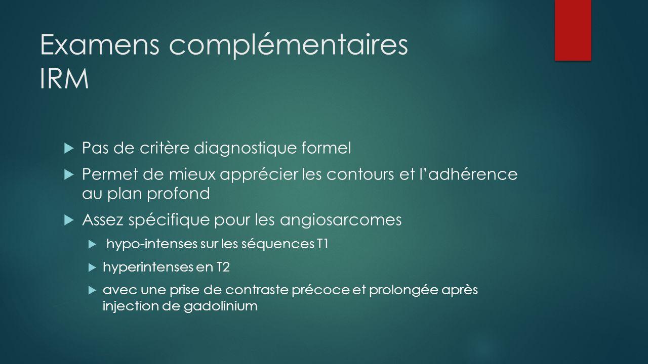 Examens complémentaires IRM