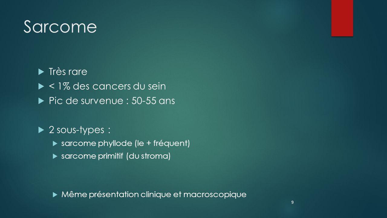 Sarcome Très rare < 1% des cancers du sein