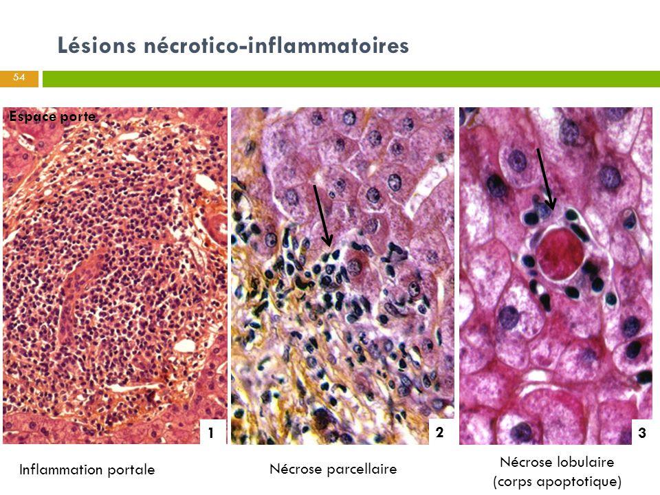 Lésions nécrotico-inflammatoires