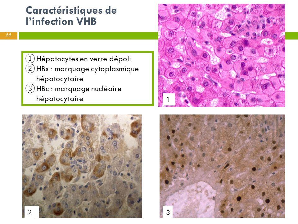 Caractéristiques de l'infection VHB