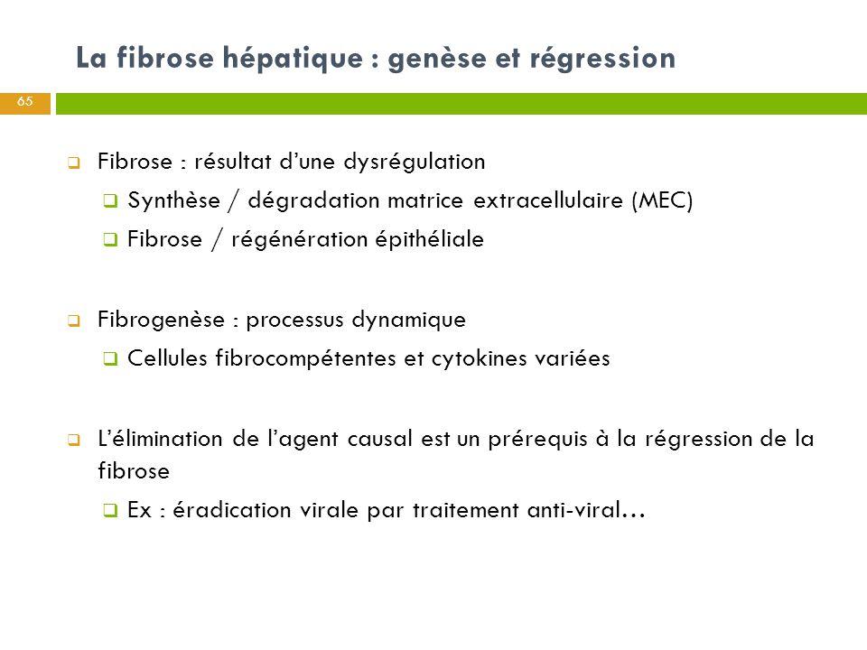La fibrose hépatique : genèse et régression