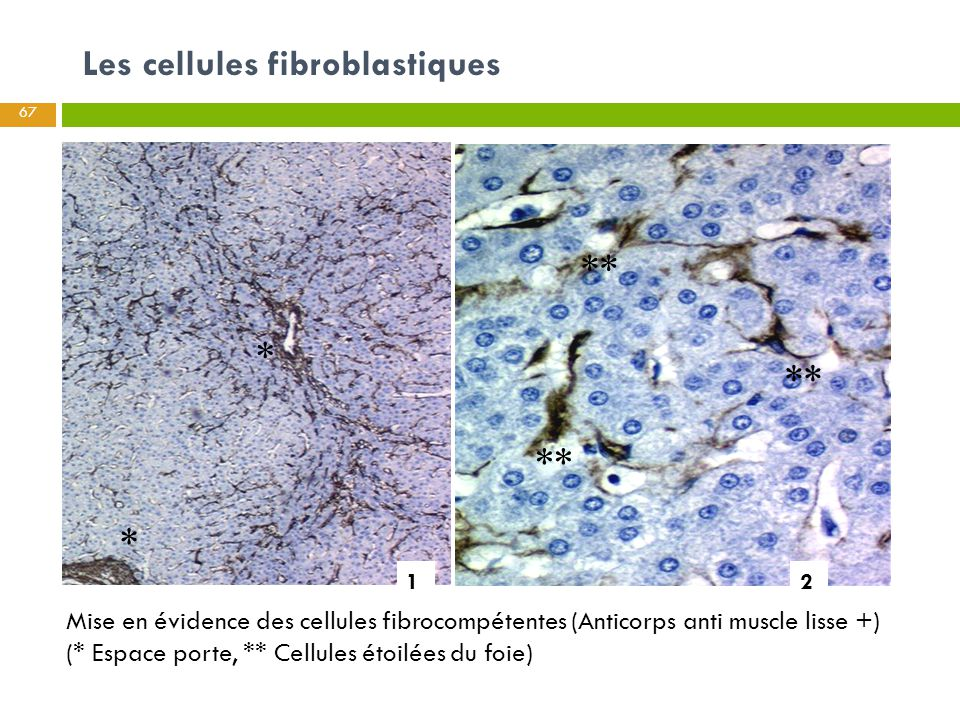 Les cellules fibroblastiques