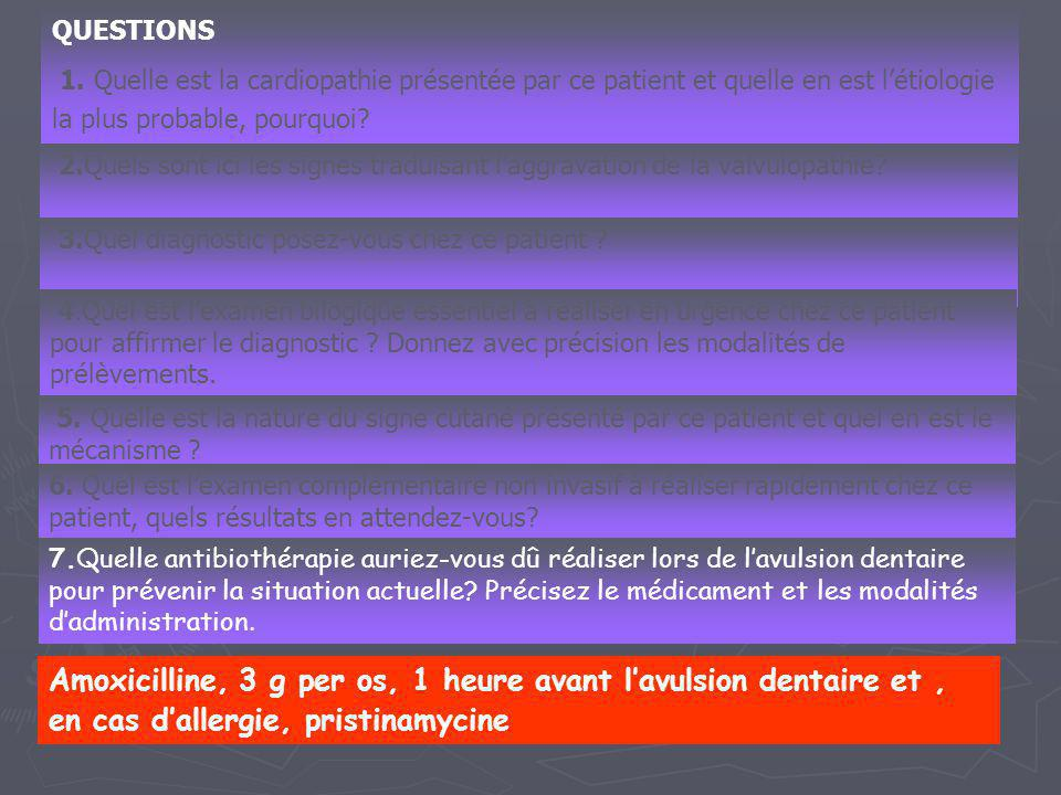 QUESTIONS 1. Quelle est la cardiopathie présentée par ce patient et quelle en est l'étiologie la plus probable, pourquoi