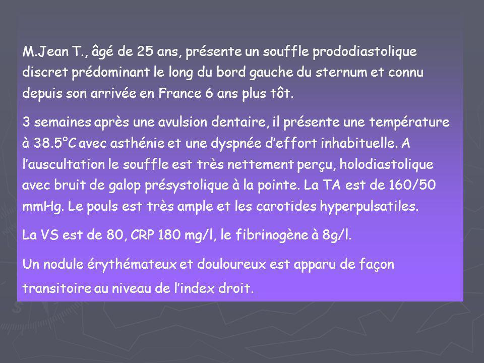 M.Jean T., âgé de 25 ans, présente un souffle prododiastolique discret prédominant le long du bord gauche du sternum et connu depuis son arrivée en France 6 ans plus tôt.