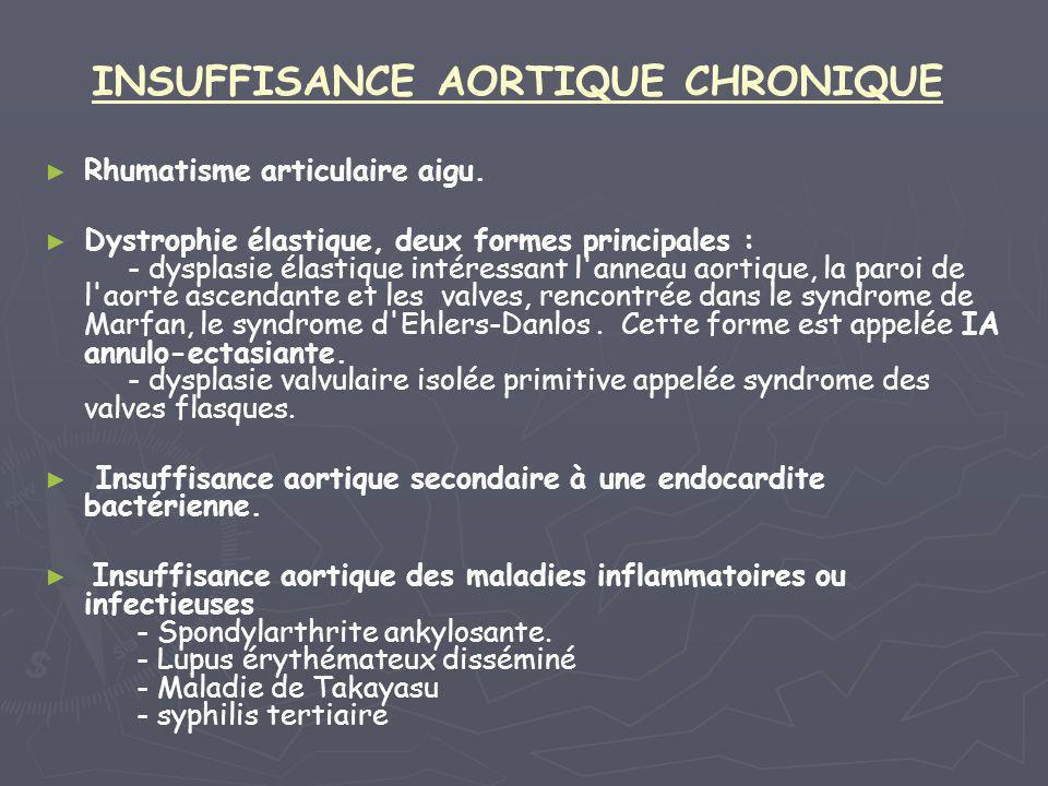 INSUFFISANCE AORTIQUE CHRONIQUE