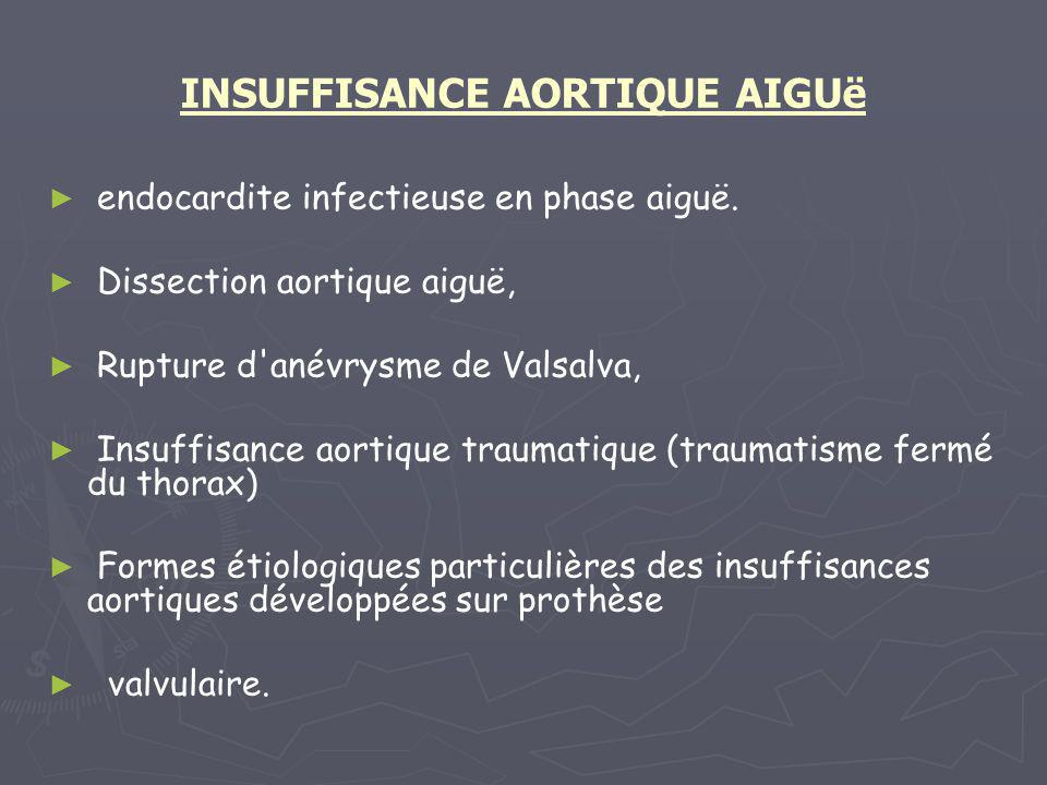INSUFFISANCE AORTIQUE AIGUë