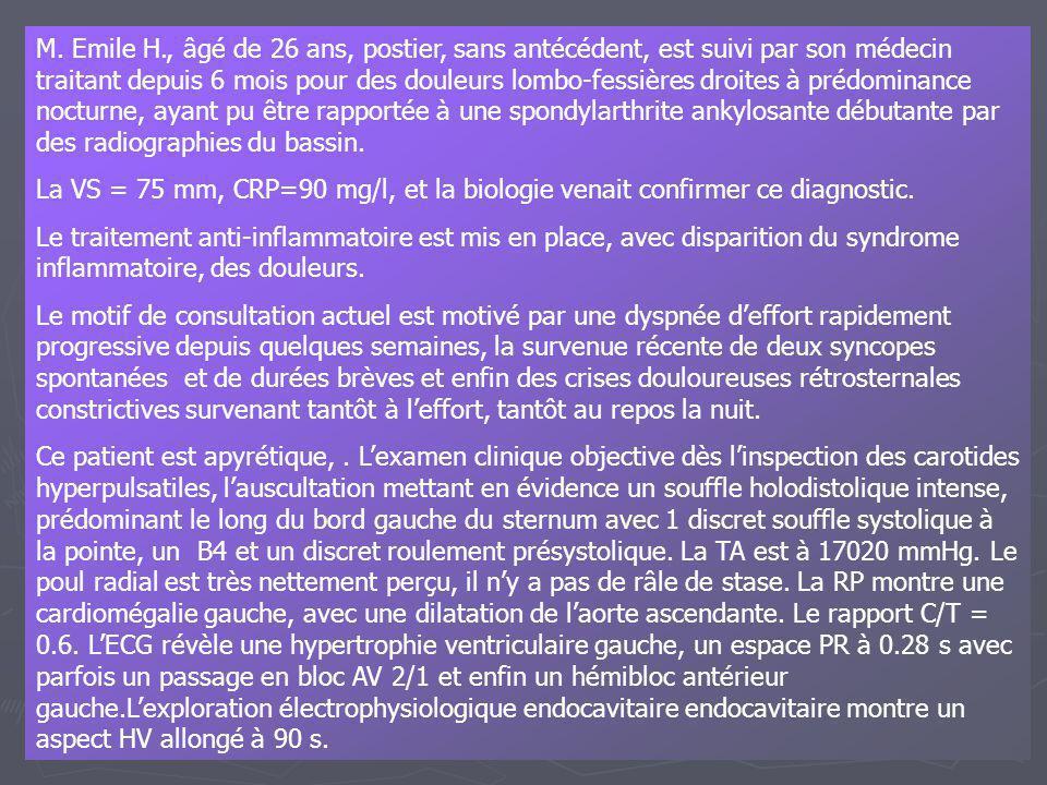 M. Emile H., âgé de 26 ans, postier, sans antécédent, est suivi par son médecin traitant depuis 6 mois pour des douleurs lombo-fessières droites à prédominance nocturne, ayant pu être rapportée à une spondylarthrite ankylosante débutante par des radiographies du bassin.