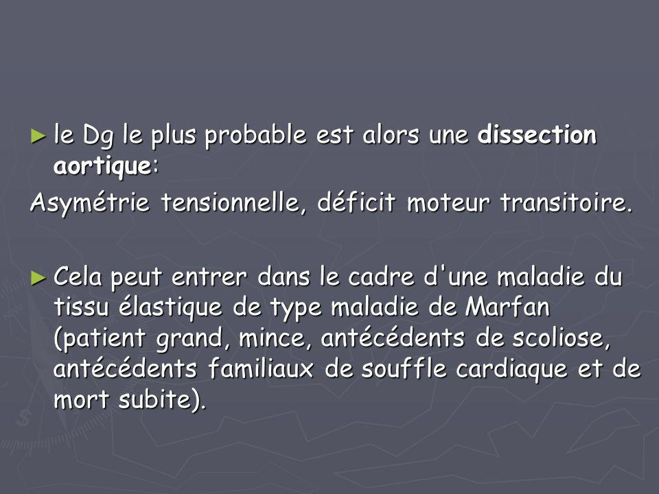 le Dg le plus probable est alors une dissection aortique: