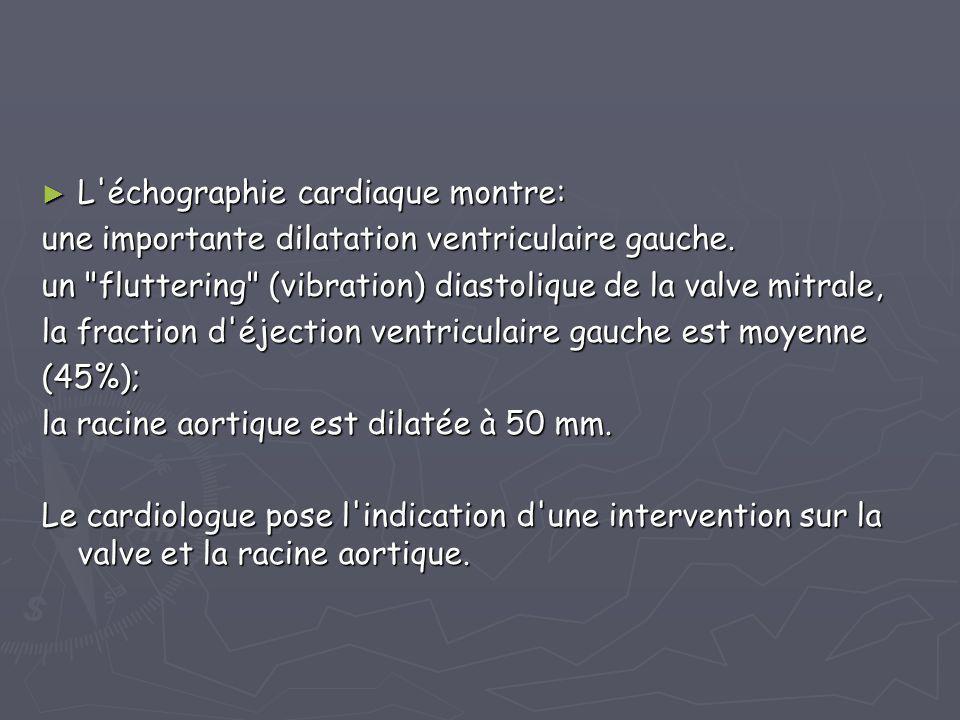 L échographie cardiaque montre: