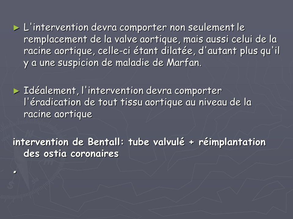 L intervention devra comporter non seulement le remplacement de la valve aortique, mais aussi celui de la racine aortique, celle-ci étant dilatée, d autant plus qu il y a une suspicion de maladie de Marfan.
