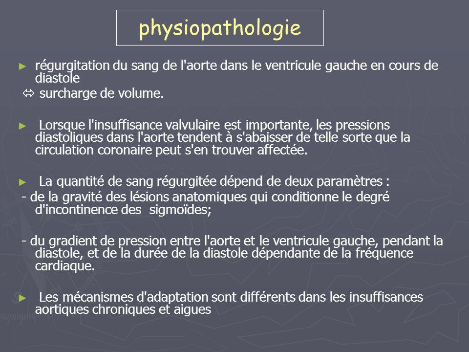 physiopathologie régurgitation du sang de l aorte dans le ventricule gauche en cours de diastole.  surcharge de volume.