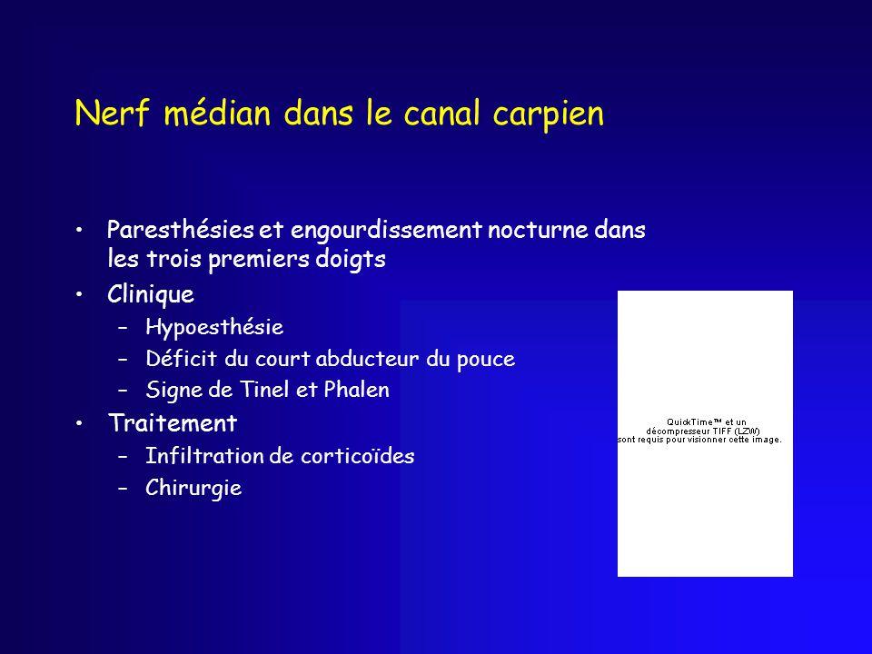 Nerf médian dans le canal carpien
