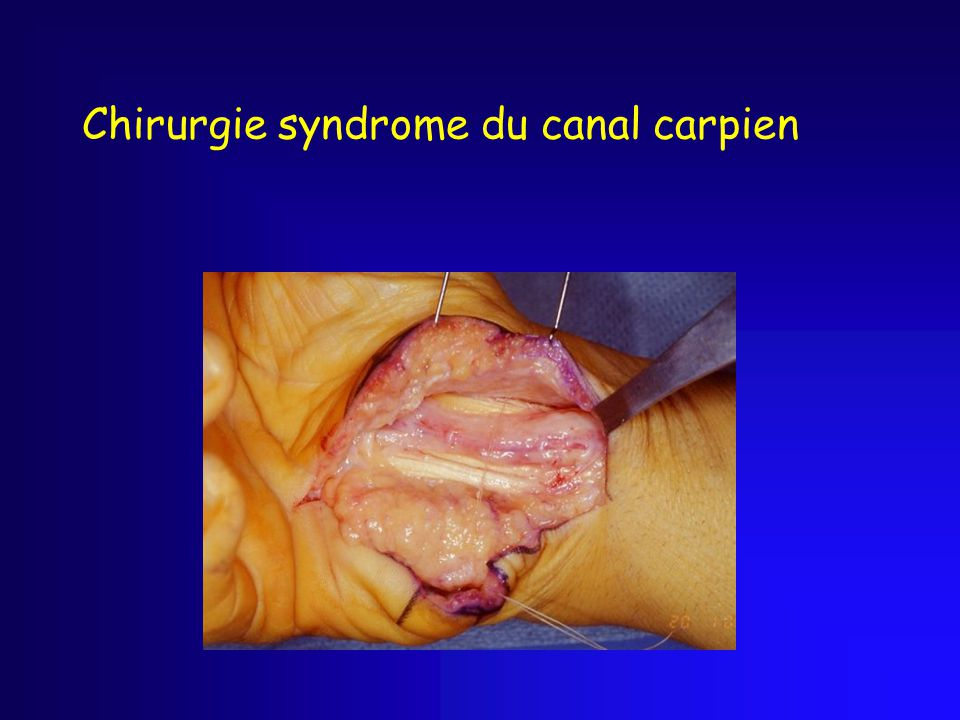 Chirurgie syndrome du canal carpien