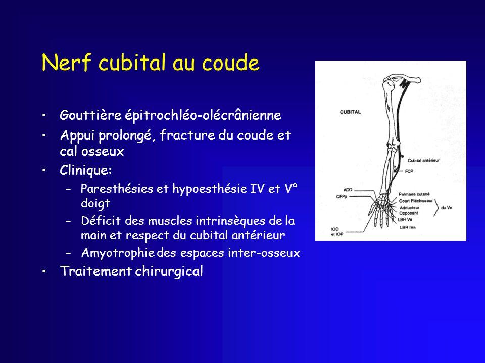 Nerf cubital au coude Gouttière épitrochléo-olécrânienne