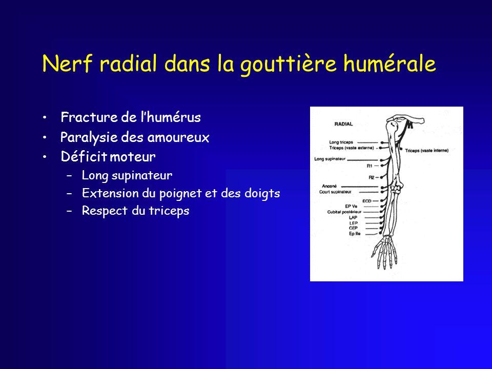 Nerf radial dans la gouttière humérale