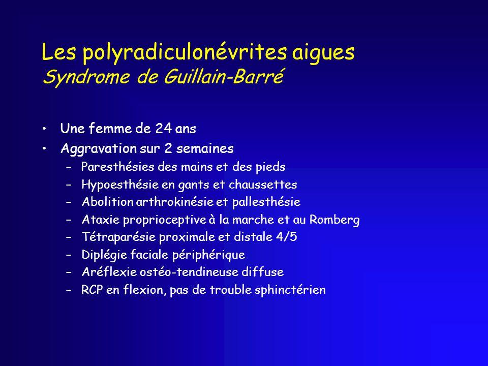 Les polyradiculonévrites aigues Syndrome de Guillain-Barré