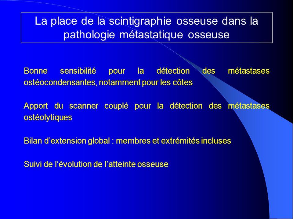 La place de la scintigraphie osseuse dans la pathologie métastatique osseuse