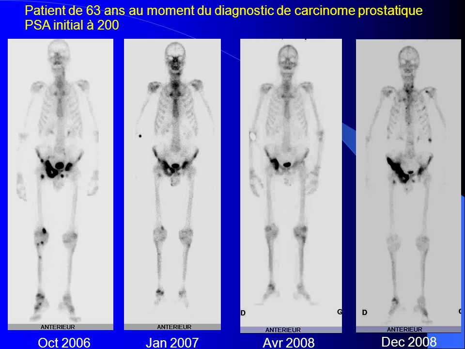 Patient de 63 ans au moment du diagnostic de carcinome prostatique