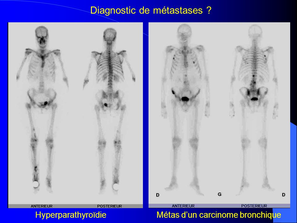 Diagnostic de métastases