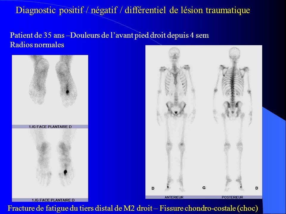 Diagnostic positif / négatif / différentiel de lésion traumatique