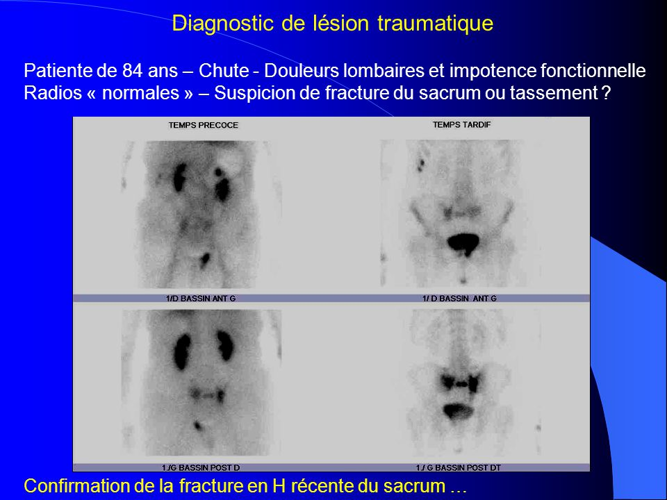 Diagnostic de lésion traumatique