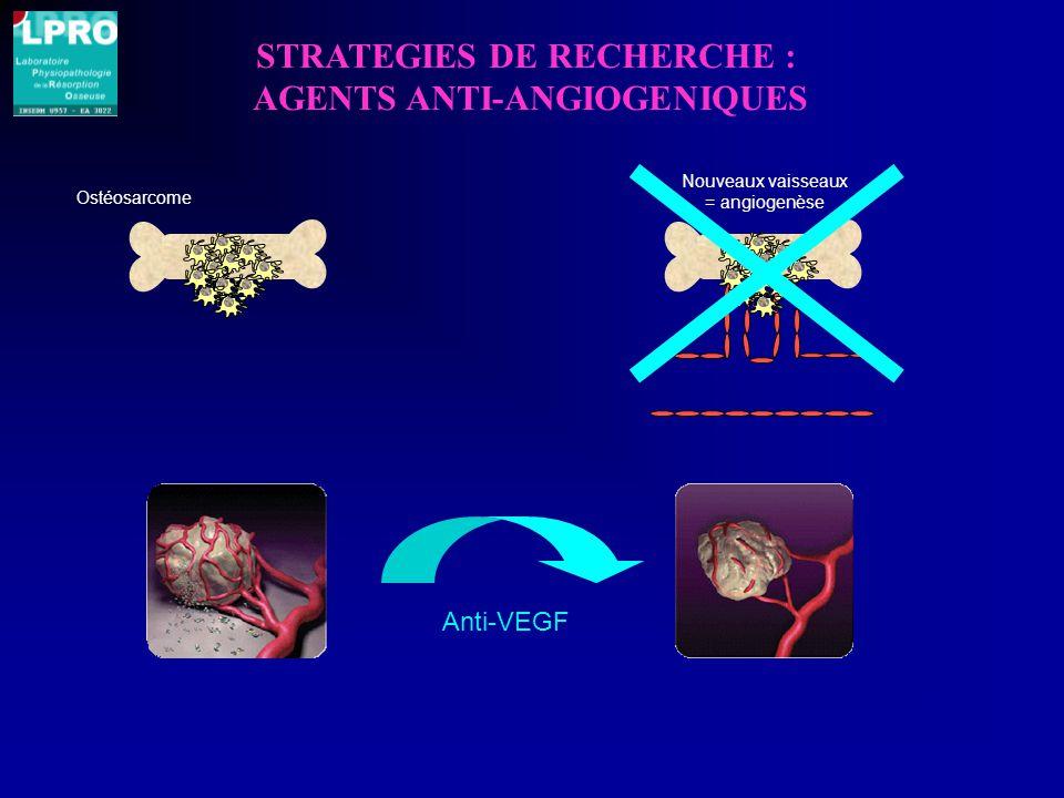 STRATEGIES DE RECHERCHE : AGENTS ANTI-ANGIOGENIQUES