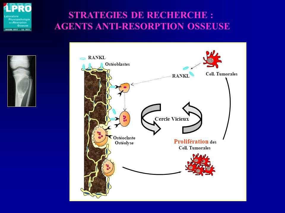 STRATEGIES DE RECHERCHE : AGENTS ANTI-RESORPTION OSSEUSE