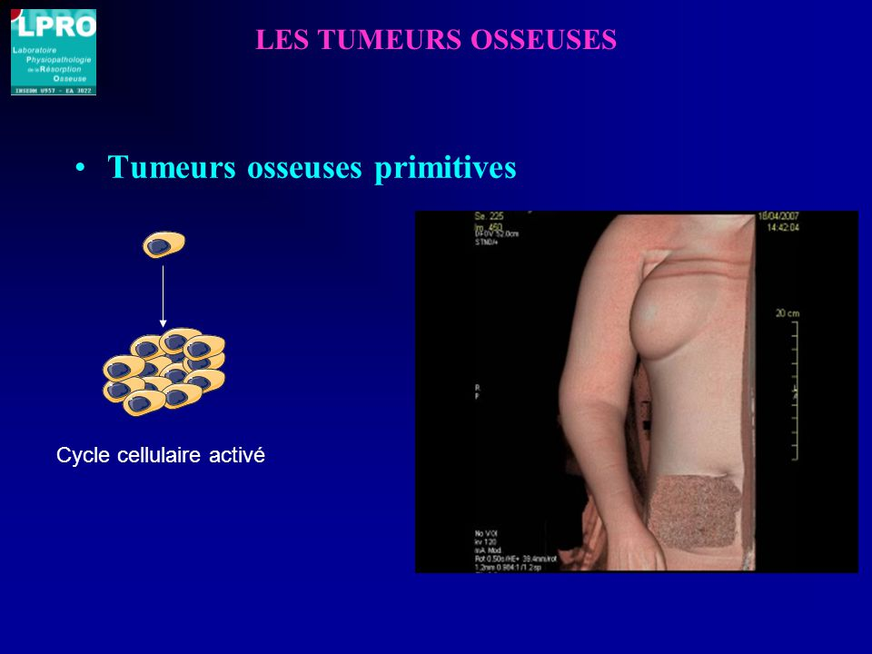 Tumeurs osseuses primitives